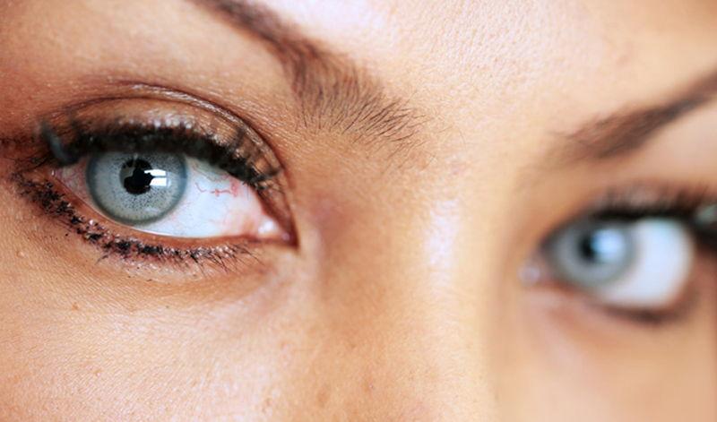 Renkli Lens Çeşitleri